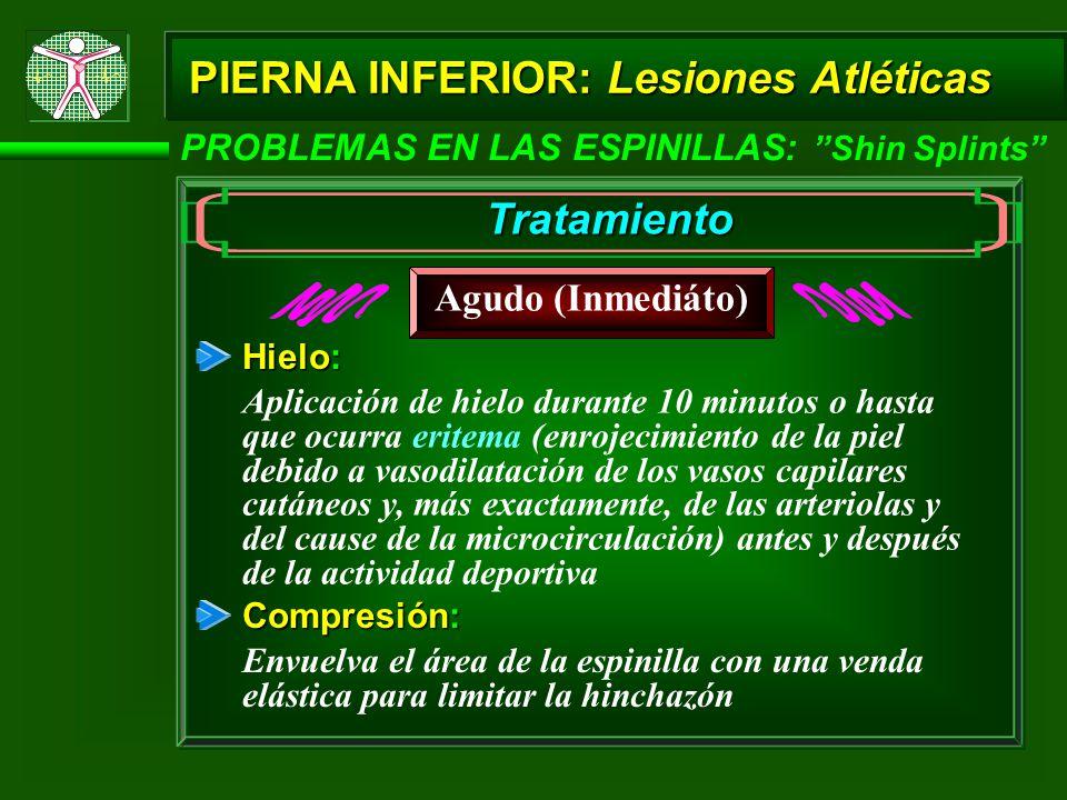 PIERNA INFERIOR: Lesiones Atléticas PROBLEMAS EN LAS ESPINILLAS: Shin Splints Tratamiento Agudo (Inmediáto) Hielo: Aplicación de hielo durante 10 minu