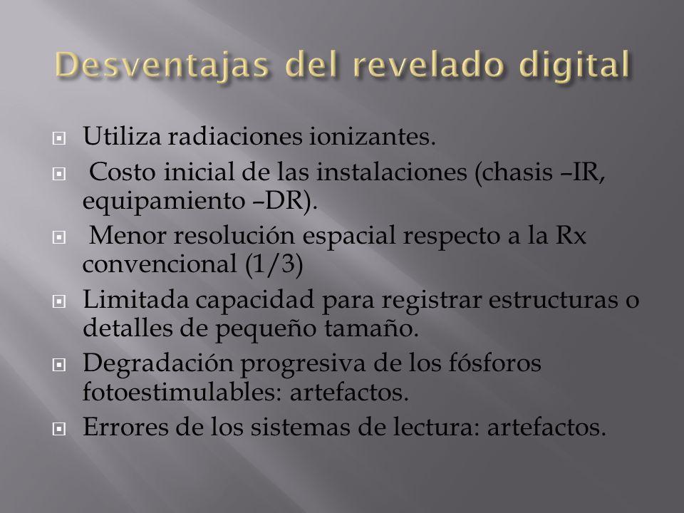 Utiliza radiaciones ionizantes. Costo inicial de las instalaciones (chasis –IR, equipamiento –DR). Menor resolución espacial respecto a la Rx convenci