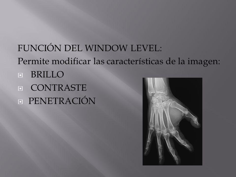 FUNCIÓN DEL WINDOW LEVEL: Permite modificar las características de la imagen: BRILLO CONTRASTE PENETRACIÓN