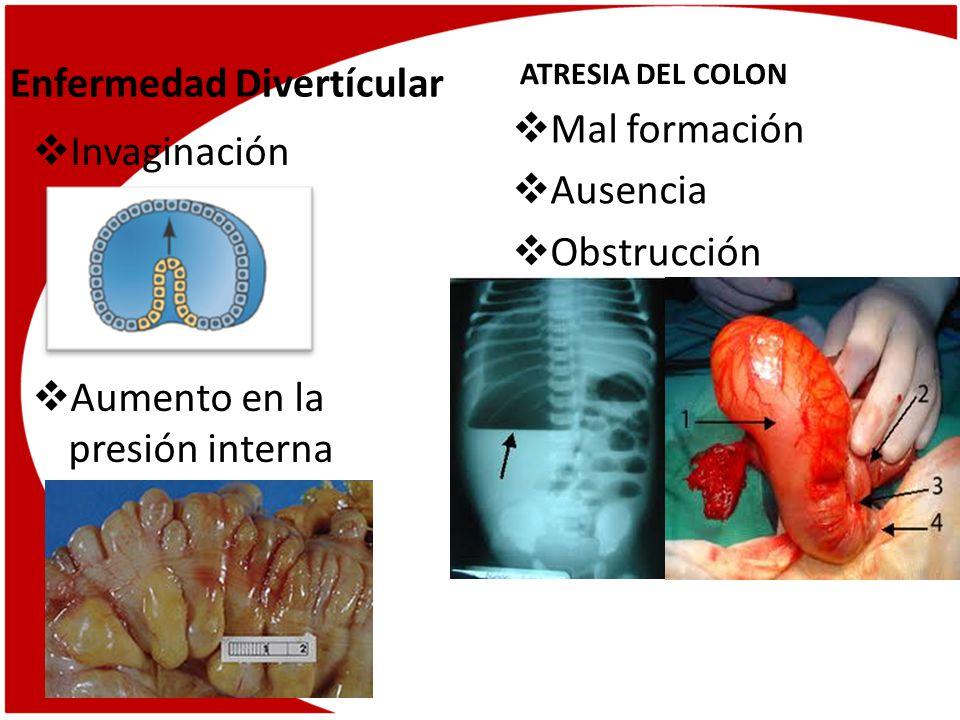 Colitis Ulcerosa Inflamación Ulceración Colitis infecciosa Infección Diarrea