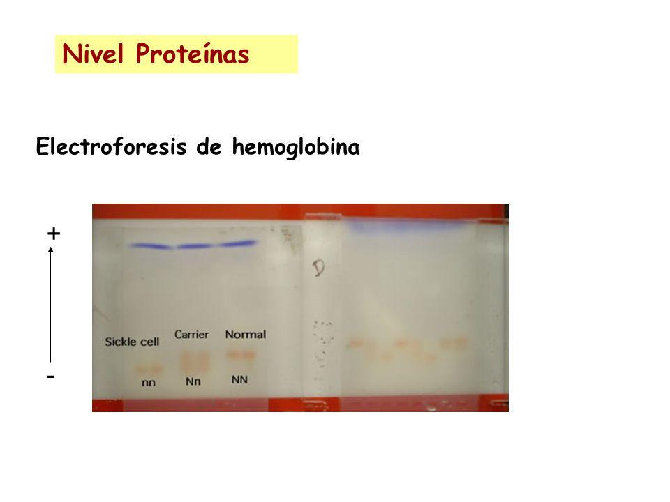 Electroforesis de hemoglobina Nivel Proteínas +-+-