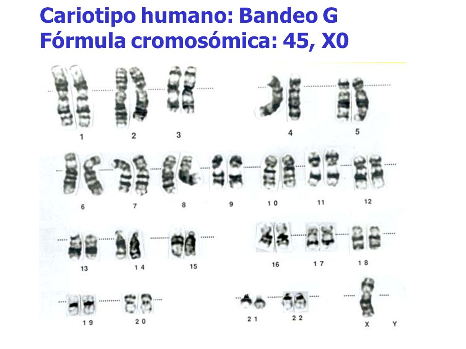 Cariotipo humano: Bandeo G Fórmula cromosómica: 45, X0