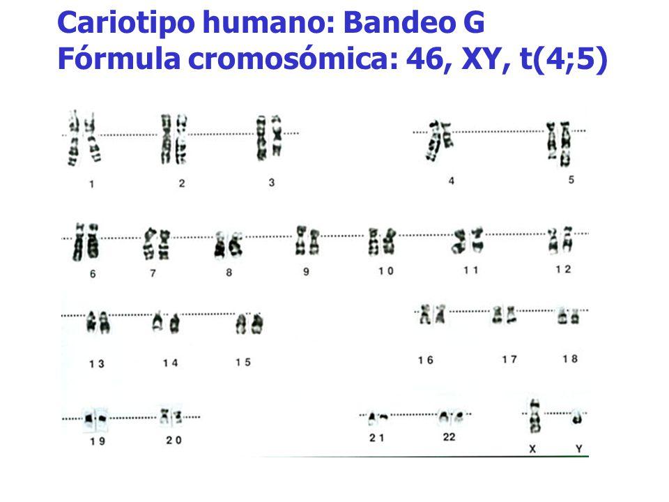 Cariotipo humano: Bandeo G Fórmula cromosómica: 46, XY, t(4;5)