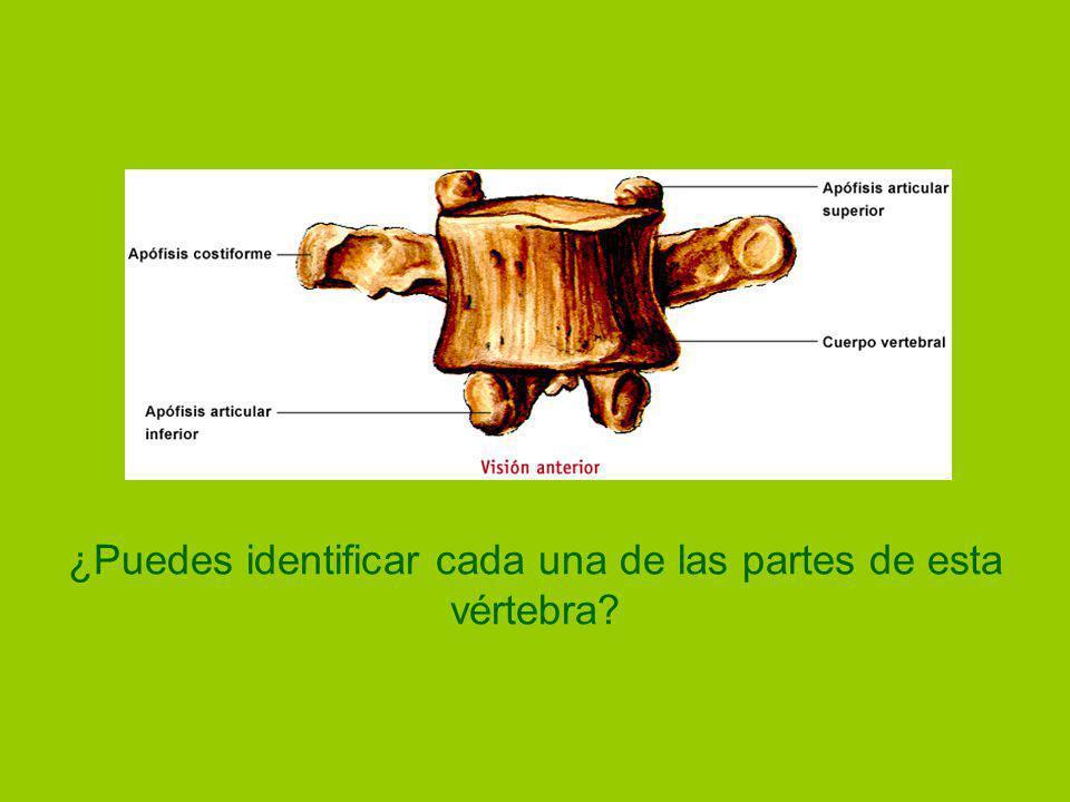 ¿Puedes identificar cada una de las partes de esta vértebra?