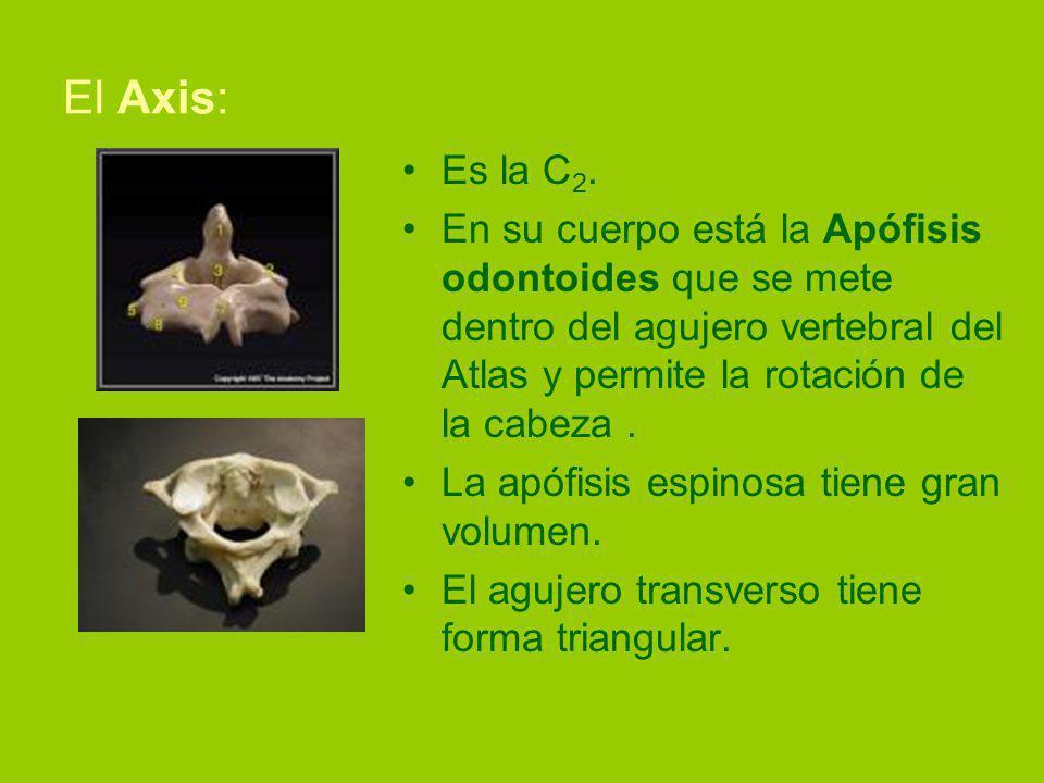 El Axis: Es la C 2.