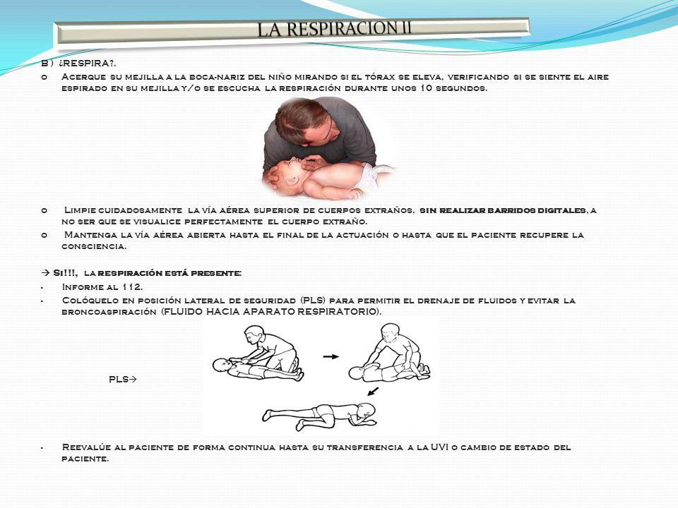 B ) ¿RESPIRA?. o Acerque su mejilla a la boca-nariz del niño mirando si el tórax se eleva, verificando si se siente el aire espirado en su mejilla y/o