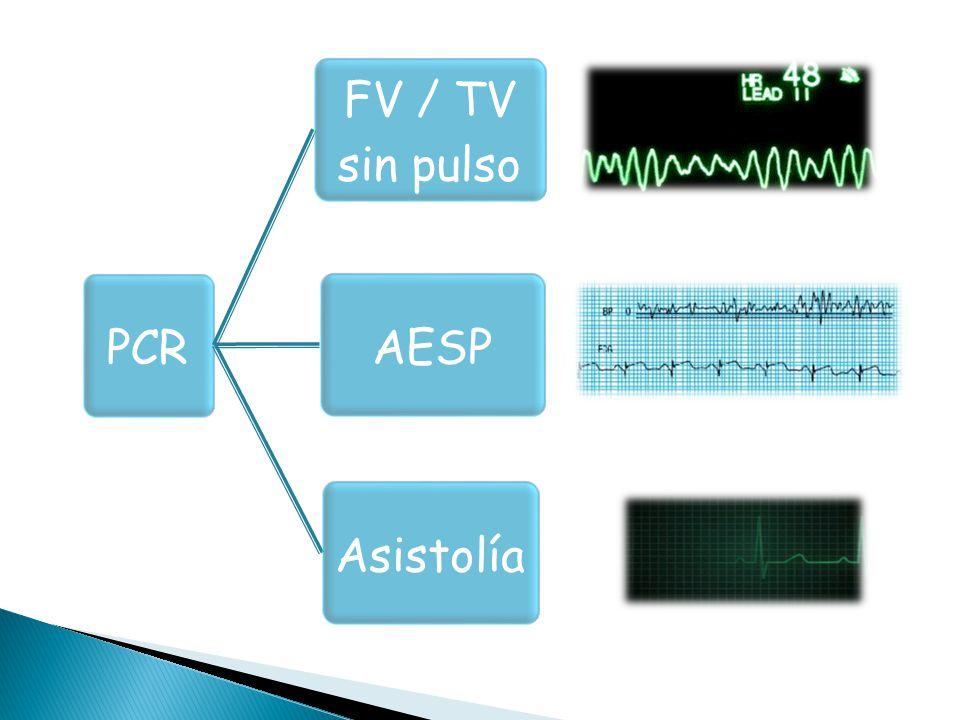 PCR FV / TV sin pulso AESPAsistolía
