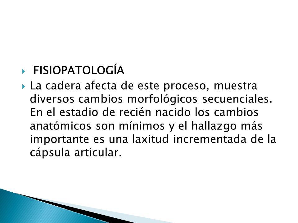 FISIOPATOLOGÍA La cadera afecta de este proceso, muestra diversos cambios morfológicos secuenciales.