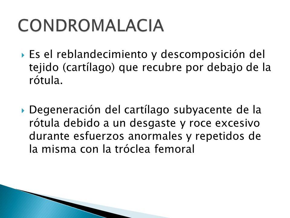 Es el reblandecimiento y descomposición del tejido (cartílago) que recubre por debajo de la rótula.
