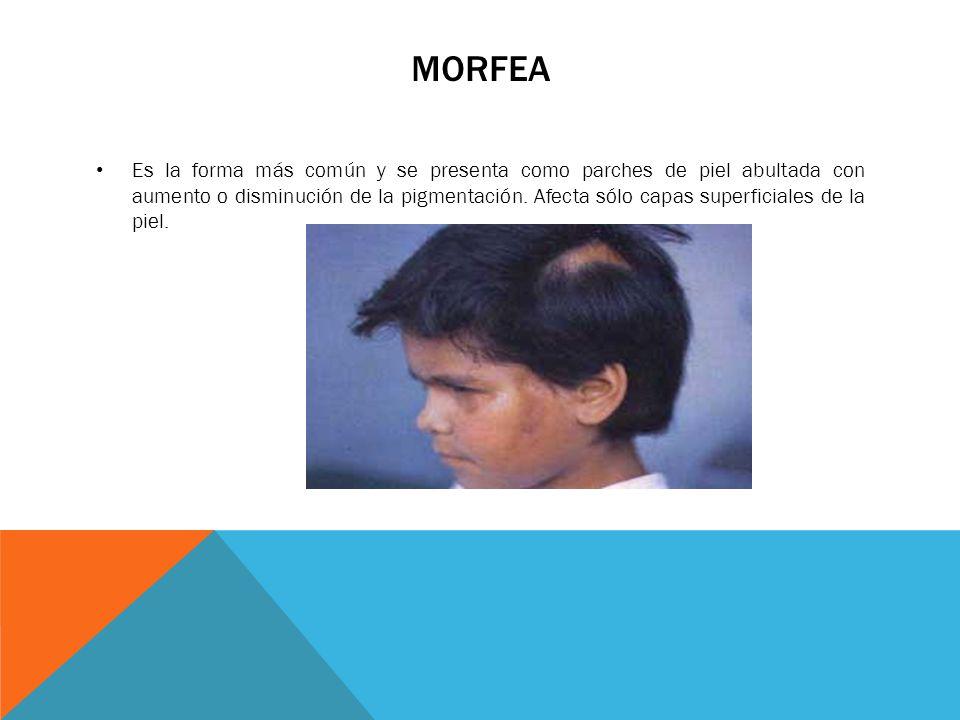 MORFEA Es la forma más común y se presenta como parches de piel abultada con aumento o disminución de la pigmentación. Afecta sólo capas superficiales