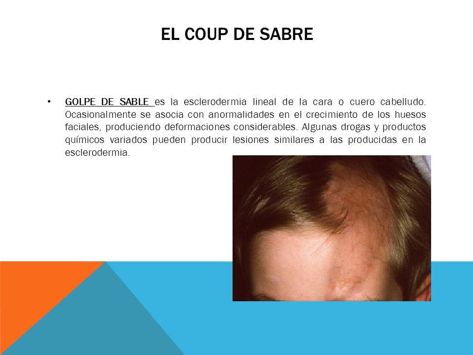 EL COUP DE SABRE GOLPE DE SABLE es la esclerodermia lineal de la cara o cuero cabelludo. Ocasionalmente se asocia con anormalidades en el crecimiento