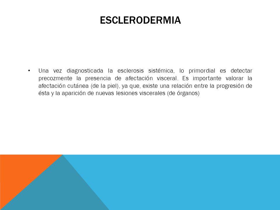 ESCLERODERMIA Una vez diagnosticada la esclerosis sistémica, lo primordial es detectar precozmente la presencia de afectación visceral. Es importante
