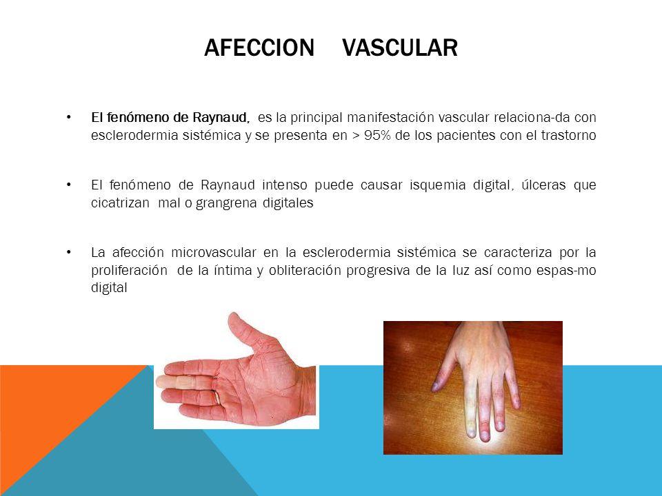 AFECCION VASCULAR El fenómeno de Raynaud, es la principal manifestación vascular relaciona-da con esclerodermia sistémica y se presenta en > 95% de lo