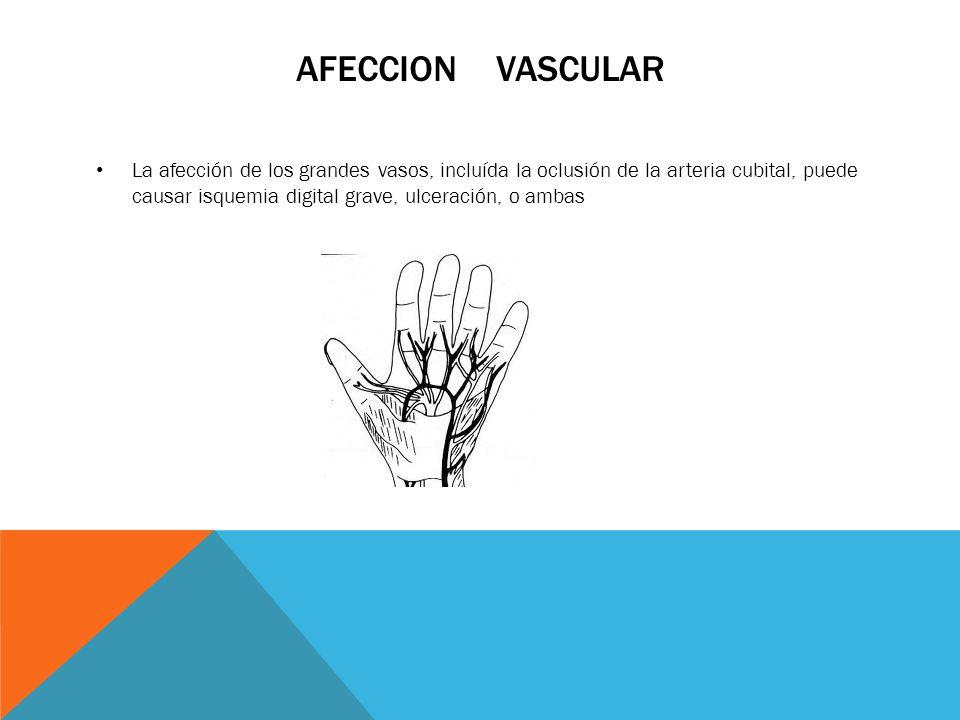 AFECCION VASCULAR La afección de los grandes vasos, incluída la oclusión de la arteria cubital, puede causar isquemia digital grave, ulceración, o amb