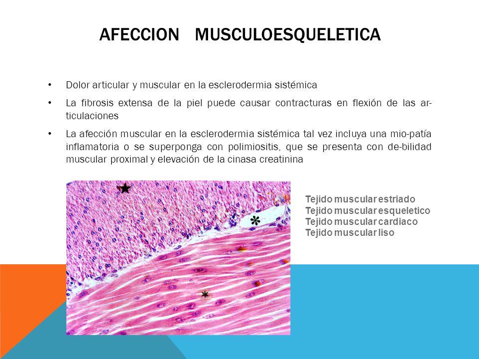 AFECCION MUSCULOESQUELETICA Dolor articular y muscular en la esclerodermia sistémica La fibrosis extensa de la piel puede causar contracturas en flexi