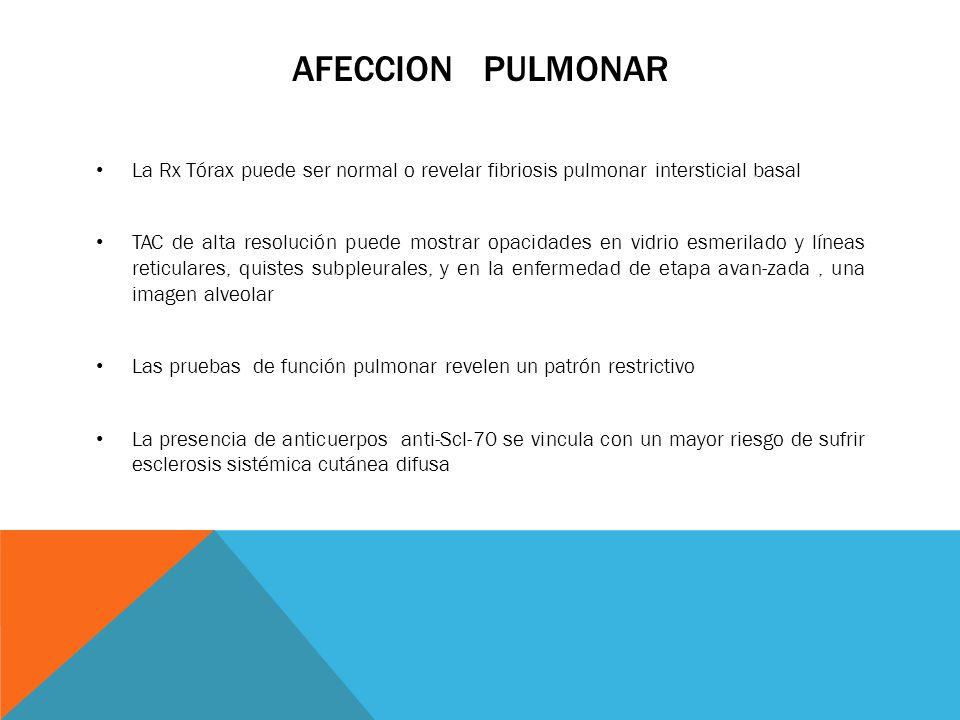 AFECCION PULMONAR La Rx Tórax puede ser normal o revelar fibriosis pulmonar intersticial basal TAC de alta resolución puede mostrar opacidades en vidr