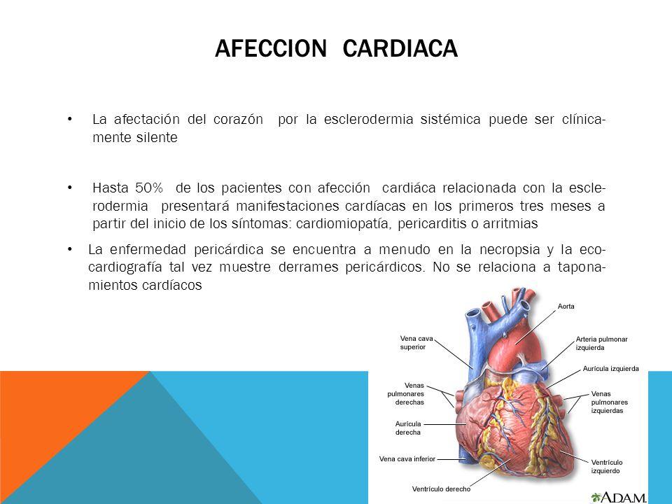 AFECCION CARDIACA La afectación del corazón por la esclerodermia sistémica puede ser clínica- mente silente Hasta 50% de los pacientes con afección ca