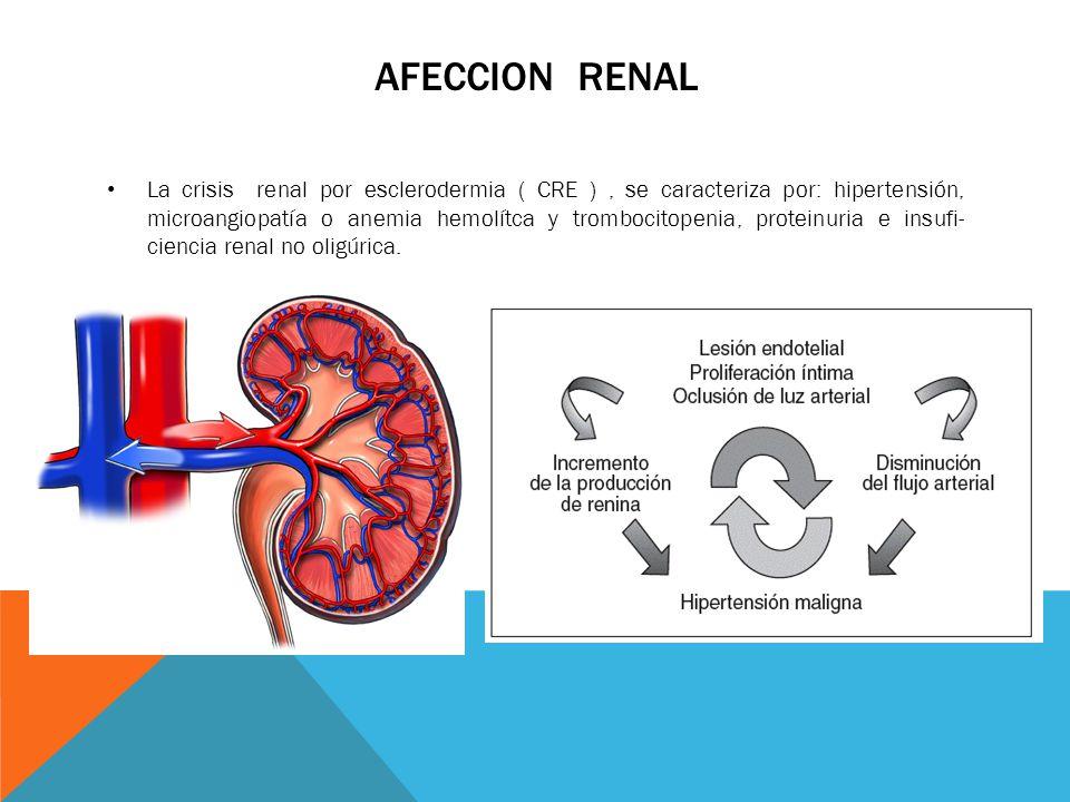 AFECCION RENAL La crisis renal por esclerodermia ( CRE ), se caracteriza por: hipertensión, microangiopatía o anemia hemolítca y trombocitopenia, prot