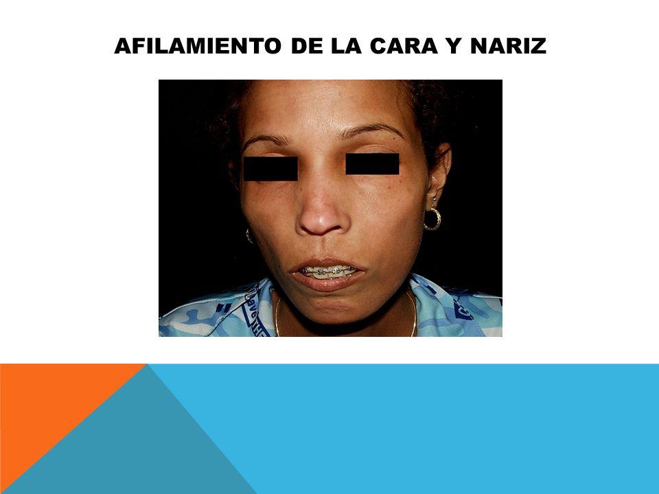 AFILAMIENTO DE LA CARA Y NARIZ
