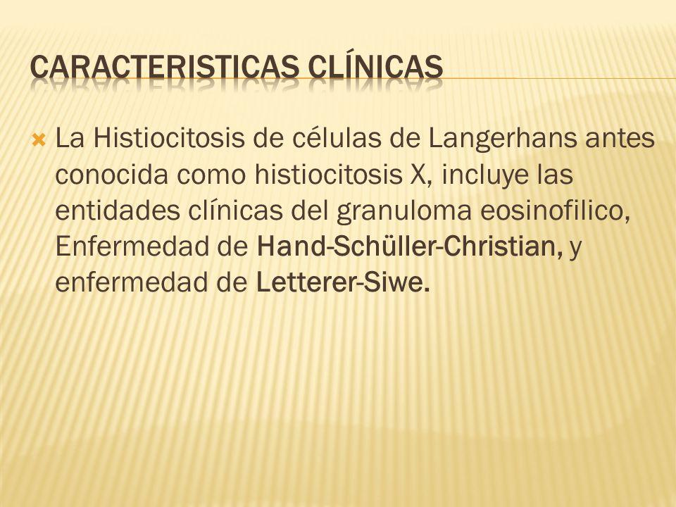La Histiocitosis de células de Langerhans antes conocida como histiocitosis X, incluye las entidades clínicas del granuloma eosinofilico, Enfermedad de Hand-Schüller-Christian, y enfermedad de Letterer-Siwe.