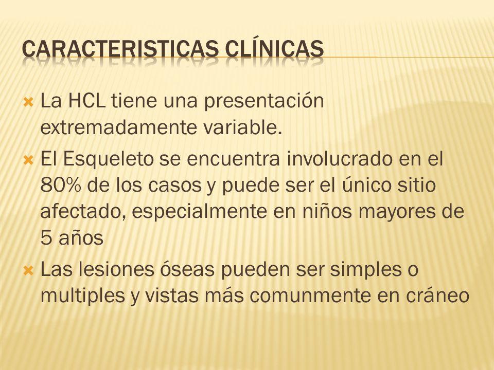 La HCL tiene una presentación extremadamente variable. El Esqueleto se encuentra involucrado en el 80% de los casos y puede ser el único sitio afectad