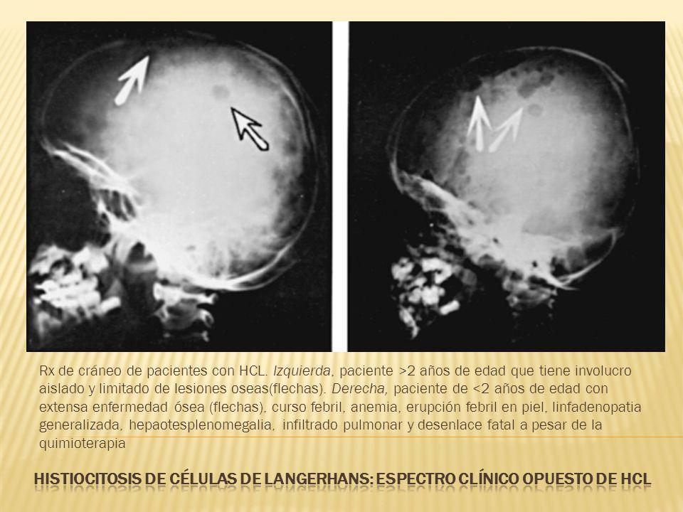 Rx de cráneo de pacientes con HCL. Izquierda, paciente >2 años de edad que tiene involucro aislado y limitado de lesiones oseas(flechas). Derecha, pac