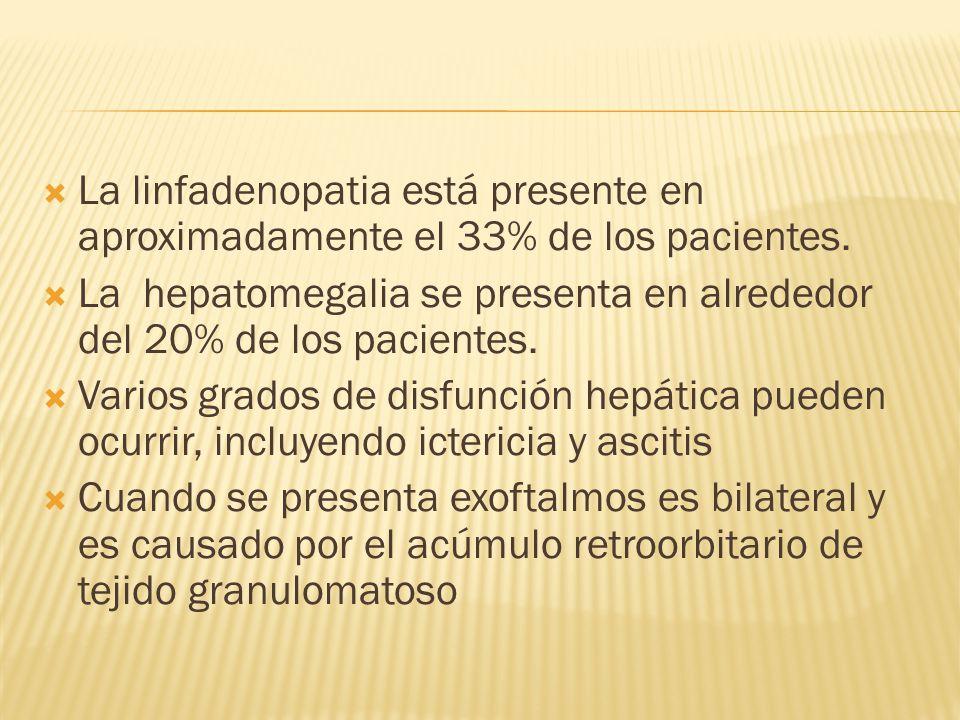 La linfadenopatia está presente en aproximadamente el 33% de los pacientes. La hepatomegalia se presenta en alrededor del 20% de los pacientes. Varios
