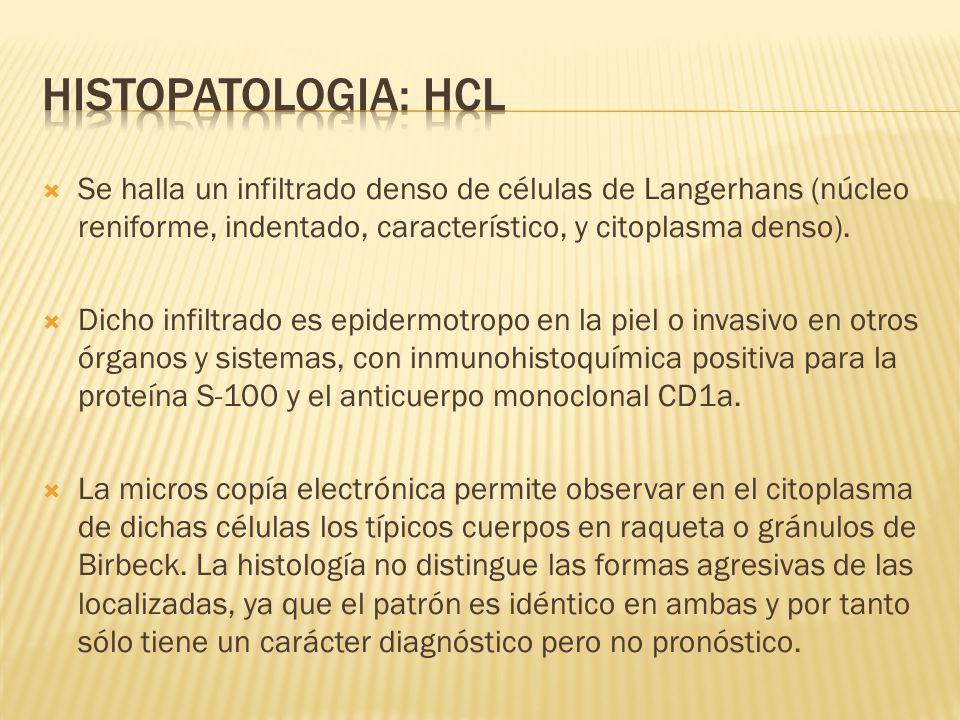 Se halla un infiltrado denso de células de Langerhans (núcleo reniforme, indentado, característico, y citoplasma denso). Dicho infiltrado es epidermot