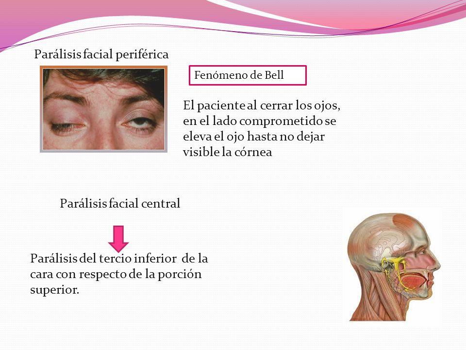 Fenómeno de Bell Parálisis facial periférica Parálisis facial central El paciente al cerrar los ojos, en el lado comprometido se eleva el ojo hasta no dejar visible la córnea Parálisis del tercio inferior de la cara con respecto de la porción superior.