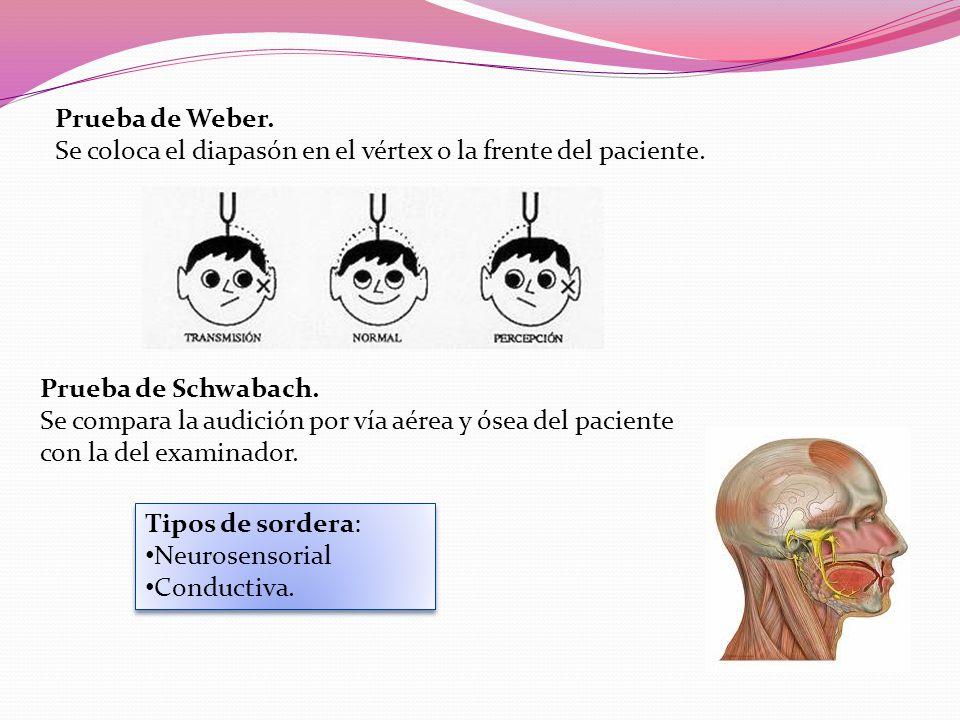 Prueba de Weber.Se coloca el diapasón en el vértex o la frente del paciente.