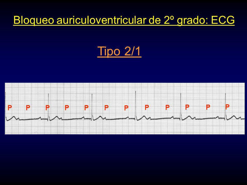 Bloqueo auriculoventricular de 2º grado: ECG Tipo 2/1 PPPPP P PP PP P P