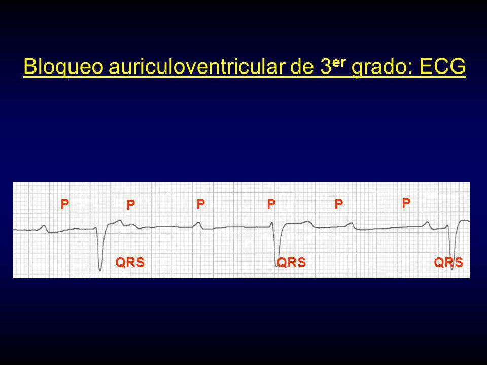 P P P P P P Bloqueo auriculoventricular de 3 er grado: ECG
