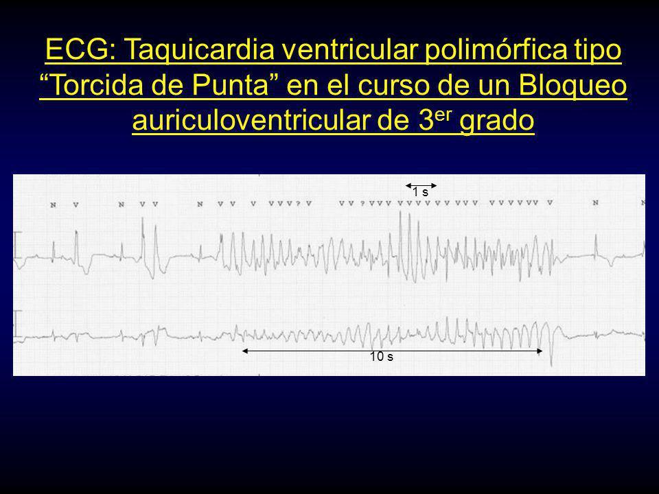 ECG: Taquicardia ventricular polimórfica tipo Torcida de Punta en el curso de un Bloqueo auriculoventricular de 3 er grado 1 s 10 s
