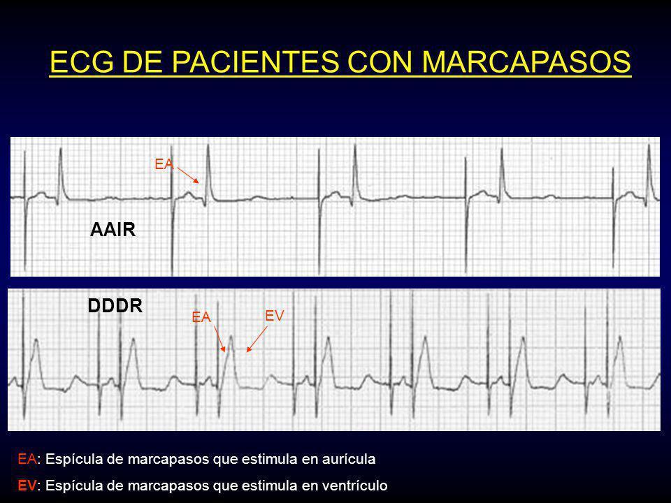 DDDR ECG DE PACIENTES CON MARCAPASOS EA EV EA: Espícula de marcapasos que estimula en aurícula EV: Espícula de marcapasos que estimula en ventrículo EA AAIR