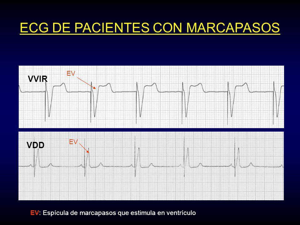 ECG DE PACIENTES CON MARCAPASOS VDD EV EV: Espícula de marcapasos que estimula en ventrículo VVIR EV