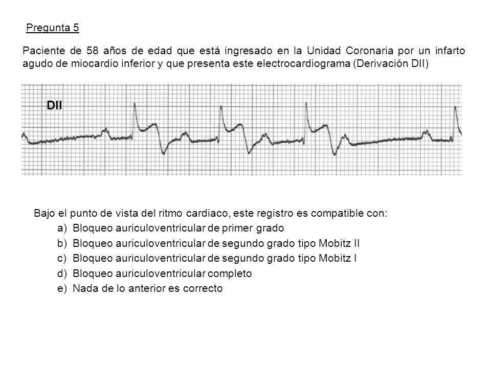 Pregunta 5 Paciente de 58 años de edad que está ingresado en la Unidad Coronaria por un infarto agudo de miocardio inferior y que presenta este electrocardiograma (Derivación DII) Bajo el punto de vista del ritmo cardiaco, este registro es compatible con: a)Bloqueo auriculoventricular de primer grado b)Bloqueo auriculoventricular de segundo grado tipo Mobitz II c)Bloqueo auriculoventricular de segundo grado tipo Mobitz I d)Bloqueo auriculoventricular completo e)Nada de lo anterior es correcto DII