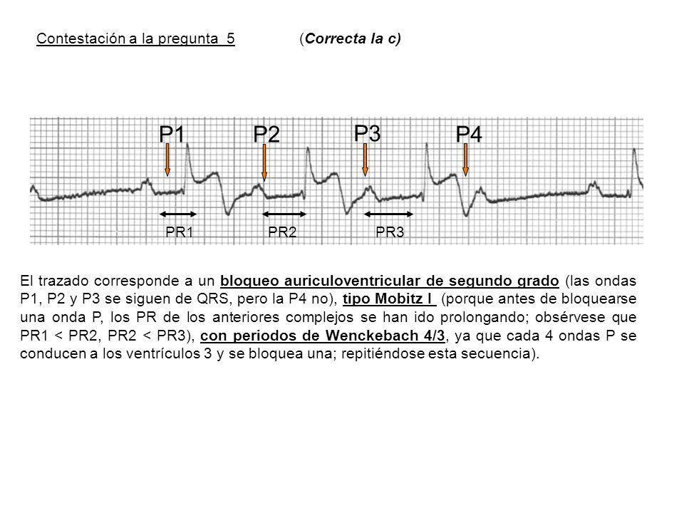 P1P2 P3 P4 PR1PR2PR3 El trazado corresponde a un bloqueo auriculoventricular de segundo grado (las ondas P1, P2 y P3 se siguen de QRS, pero la P4 no), tipo Mobitz I (porque antes de bloquearse una onda P, los PR de los anteriores complejos se han ido prolongando; obsérvese que PR1 < PR2, PR2 < PR3), con periodos de Wenckebach 4/3, ya que cada 4 ondas P se conducen a los ventrículos 3 y se bloquea una; repitiéndose esta secuencia).