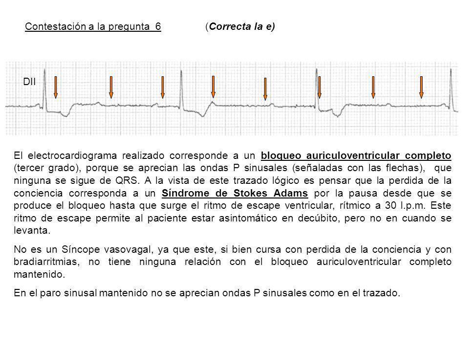Contestación a la pregunta 6 (Correcta la e) El electrocardiograma realizado corresponde a un bloqueo auriculoventricular completo (tercer grado), porque se aprecian las ondas P sinusales (señaladas con las flechas), que ninguna se sigue de QRS.
