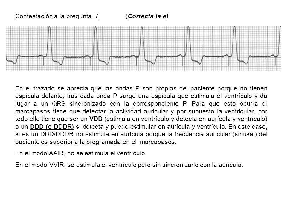 Contestación a la pregunta 7 (Correcta la e) En el trazado se aprecia que las ondas P son propias del paciente porque no tienen espícula delante; tras cada onda P surge una espícula que estimula el ventrículo y da lugar a un QRS sincronizado con la correspondiente P.