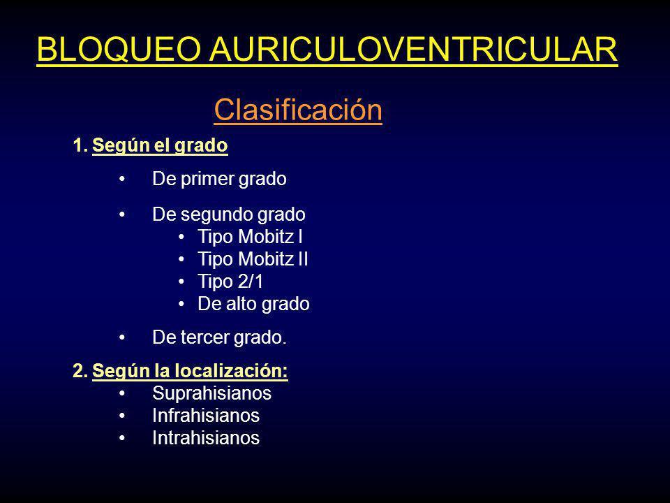 BLOQUEO AURICULOVENTRICULAR Clasificación 1.Según el grado De primer grado De segundo grado Tipo Mobitz I Tipo Mobitz II Tipo 2/1 De alto grado De tercer grado.