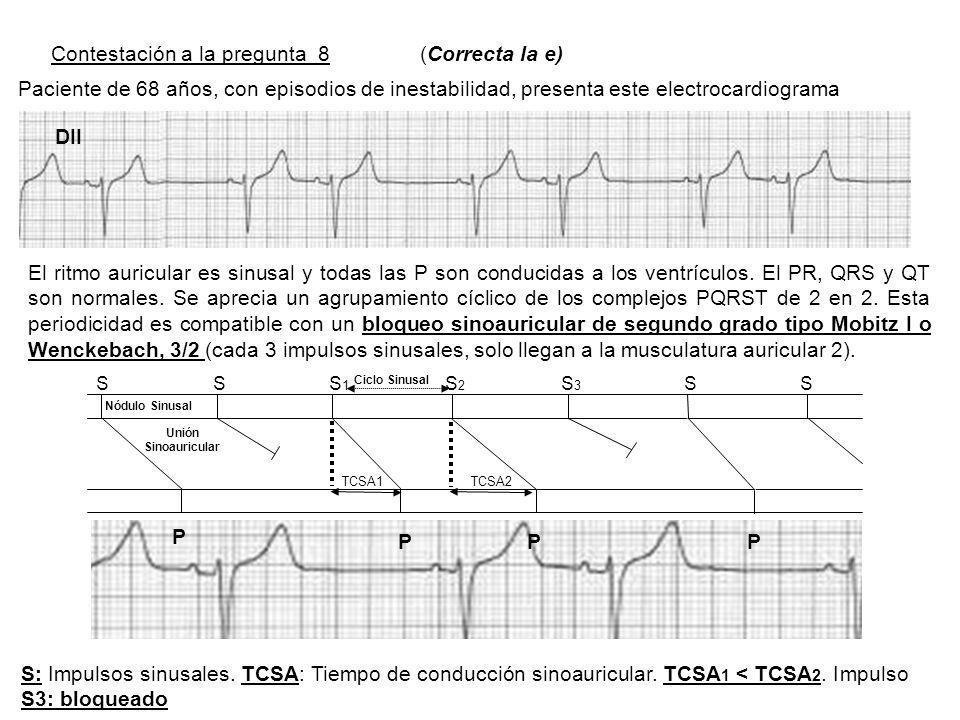 Contestación a la pregunta 8 (Correcta la e) Paciente de 68 años, con episodios de inestabilidad, presenta este electrocardiograma El ritmo auricular es sinusal y todas las P son conducidas a los ventrículos.