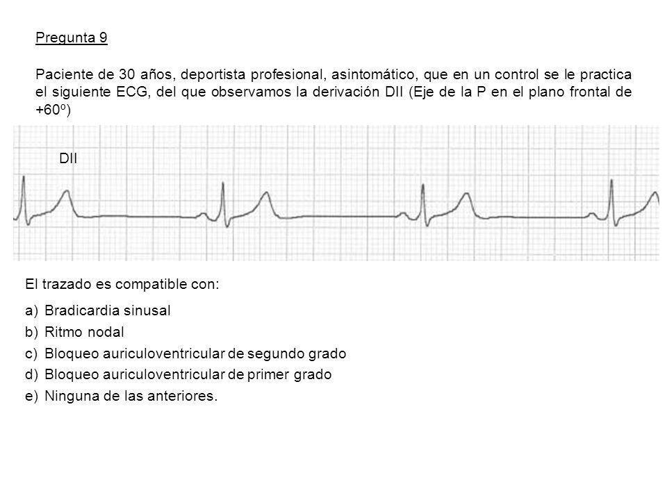 Pregunta 9 DII Paciente de 30 años, deportista profesional, asintomático, que en un control se le practica el siguiente ECG, del que observamos la derivación DII (Eje de la P en el plano frontal de +60º) El trazado es compatible con: a)Bradicardia sinusal b)Ritmo nodal c)Bloqueo auriculoventricular de segundo grado d)Bloqueo auriculoventricular de primer grado e)Ninguna de las anteriores.