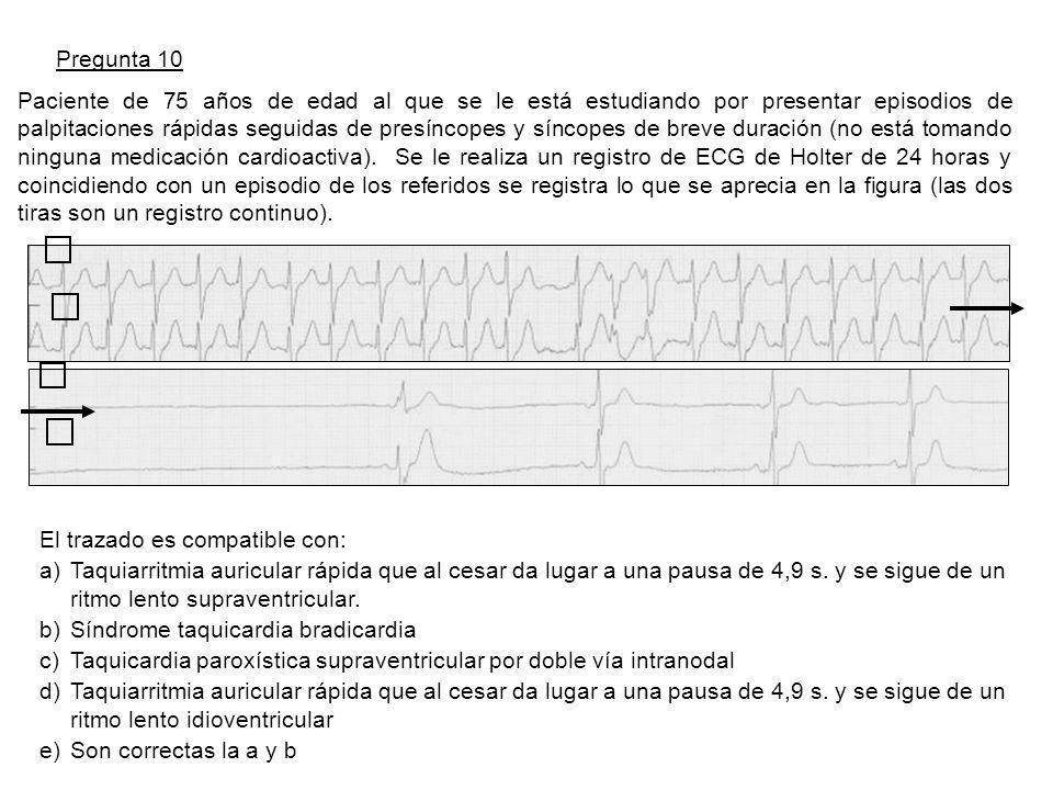 Pregunta 10 Paciente de 75 años de edad al que se le está estudiando por presentar episodios de palpitaciones rápidas seguidas de presíncopes y síncopes de breve duración (no está tomando ninguna medicación cardioactiva).