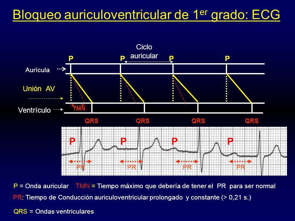 Bloqueo auriculoventricular de 1 er grado: ECG Ciclo auricular P Unión AV Ventrículo P P = Onda auricular PR: Tiempo de Conducción auriculoventricular prolongado y constante (> 0,21 s.) TMN TMN = Tiempo máximo que debería de tener el PR para ser normal Aurícula PPPP PPP PR QRS QRS = Ondas ventriculares