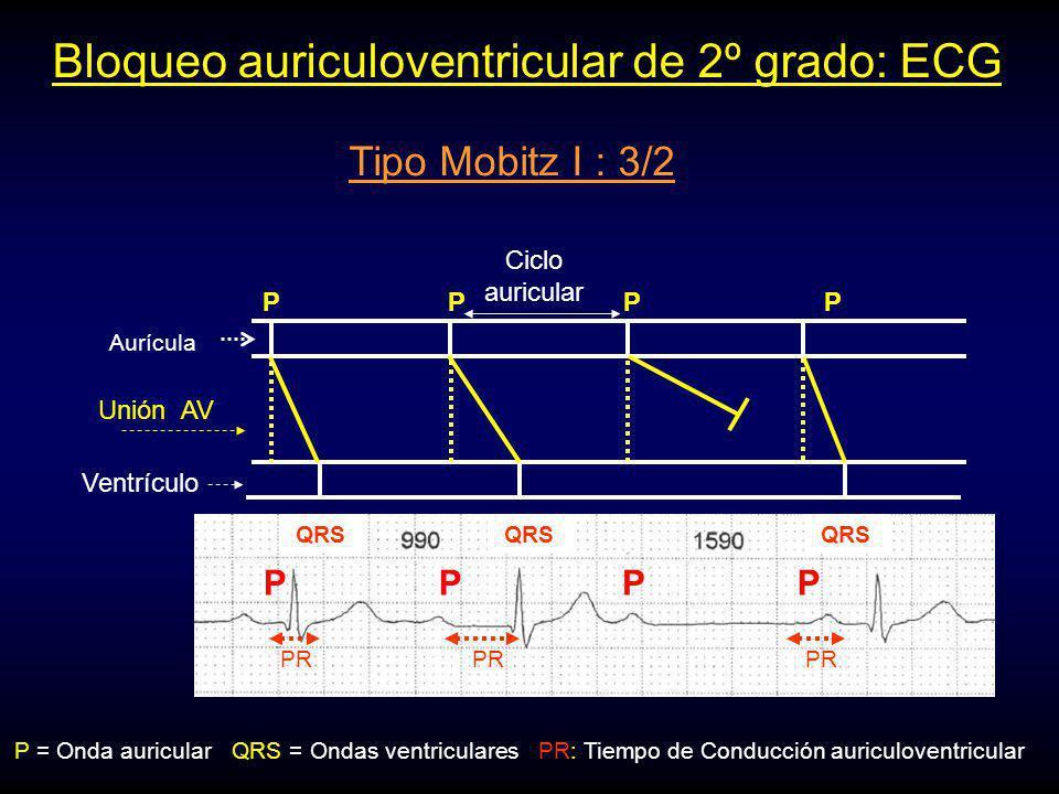 Bloqueo auriculoventricular de 2º grado: ECG PR: Tiempo de Conducción auriculoventricularP = Onda auricularQRS = Ondas ventriculares Ciclo auricular P Unión AV Ventrículo P Aurícula PPP PPP PR QRS PR Tipo Mobitz I : 3/2