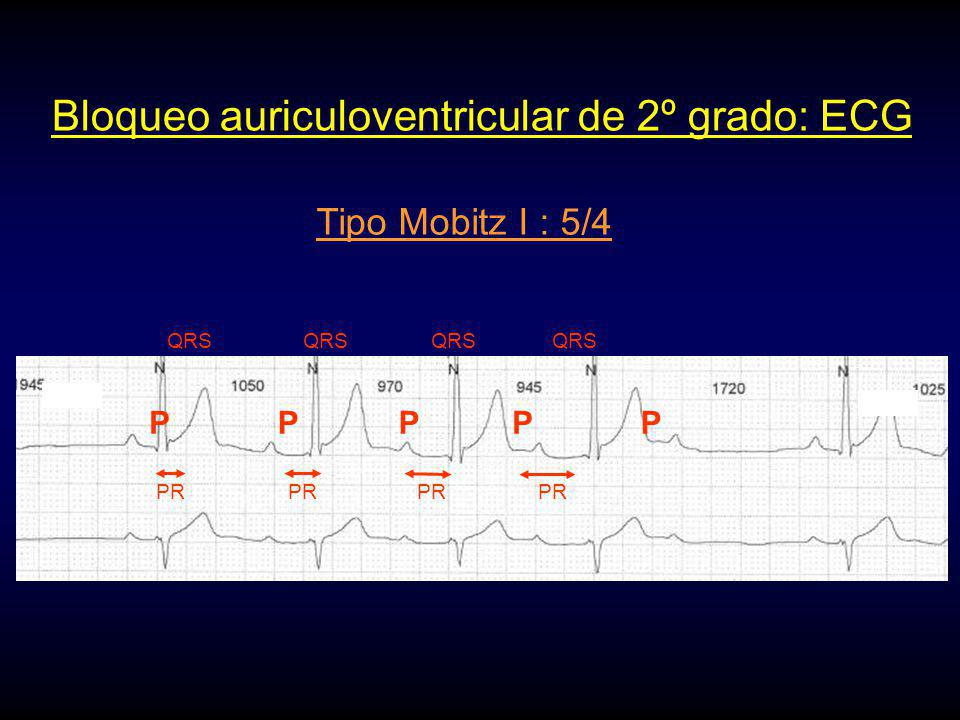 TAQUIARRITMIA AURICULAR CRÓNICASINO Se desea sincronía AV Se desea respuesta en frecuencia NO BLOQUEO AURICULOVENTRICULAR INDICACIONES DE MODOS DE ESTIMULACIÓN CARDIACA PERMANENTE NOSI VVI VVIR Se desea estimulación auricular NO SI VDD Se desea respuesta en frecuencia NO SI DDDDDDR Se desea respuesta en frecuencia NOSI VVIVVIR