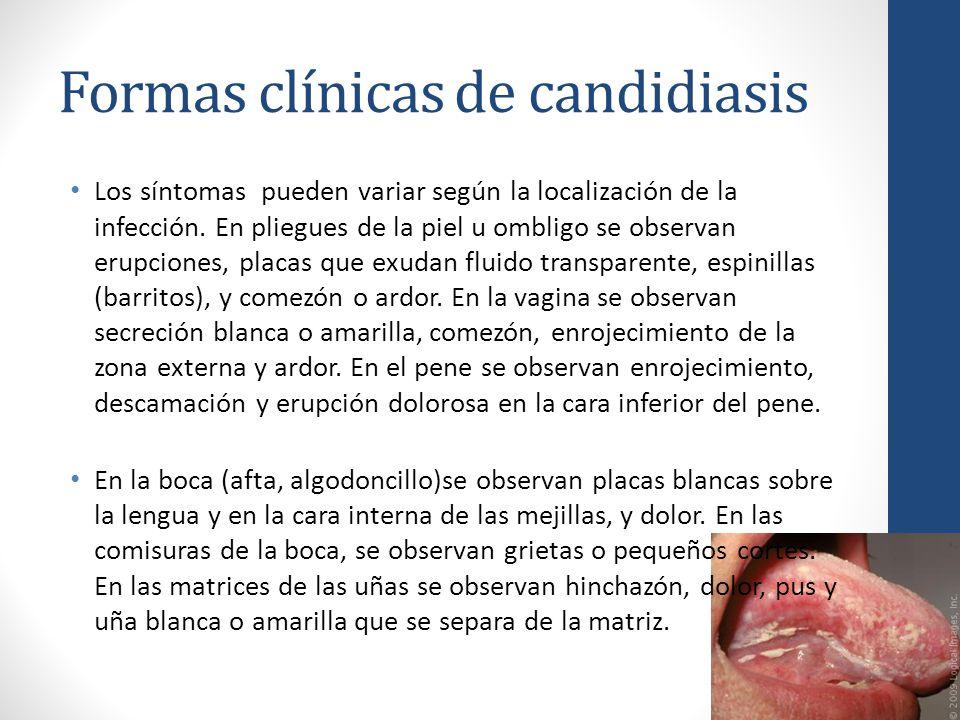 Formas clínicas de candidiasis Los síntomas pueden variar según la localización de la infección. En pliegues de la piel u ombligo se observan erupcion