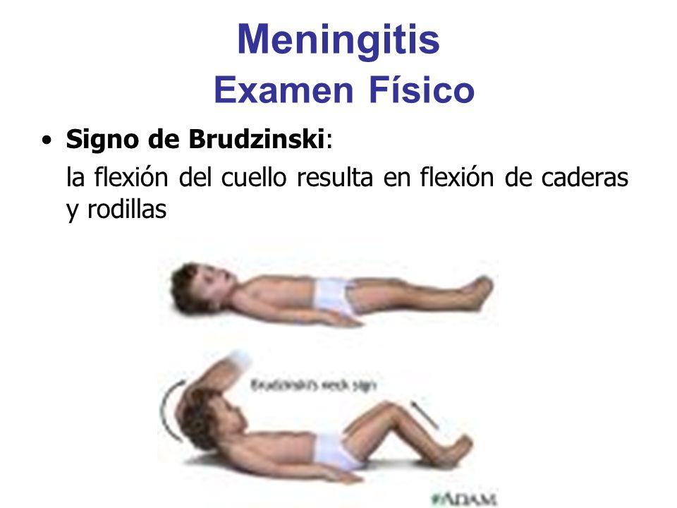 Meningitis Examen Físico Signo de Brudzinski: la flexión del cuello resulta en flexión de caderas y rodillas