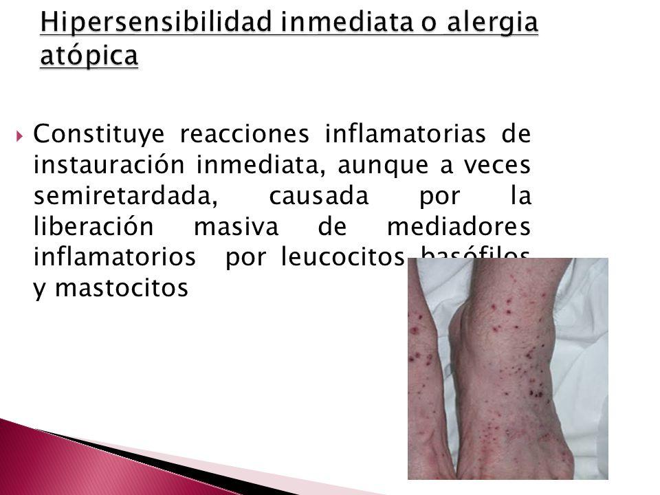 Constituye reacciones inflamatorias de instauración inmediata, aunque a veces semiretardada, causada por la liberación masiva de mediadores inflamator