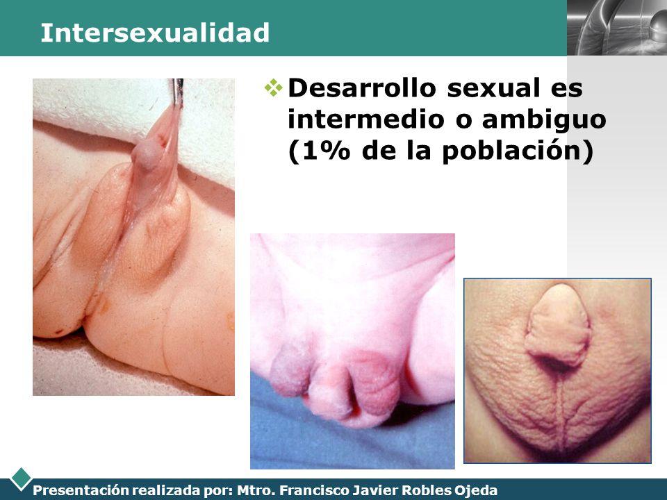 LOGO Presentación realizada por: Mtro. Francisco Javier Robles Ojeda Intersexualidad Desarrollo sexual es intermedio o ambiguo (1% de la población)